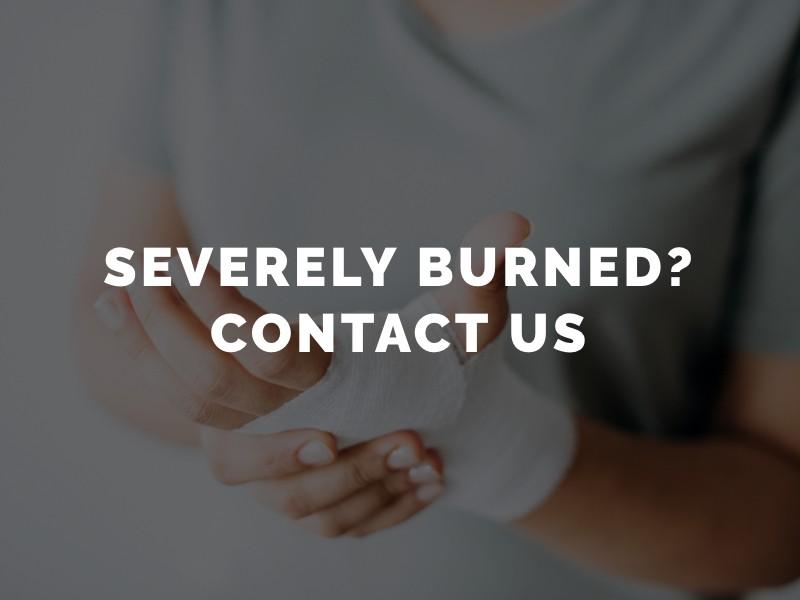 Los Angeles Burn Injury Attorney